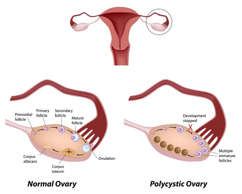 illustration of a normal ovary and a polycystic ovary